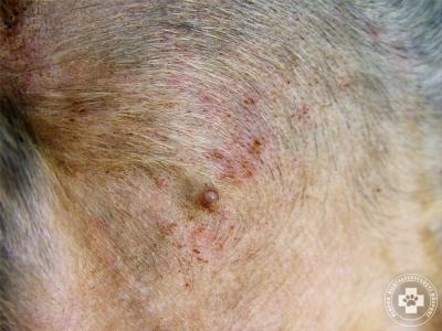 A pusztula (gennyes hólyag) gyakori elsődleges bőrtünet bármely bakteriális bőrgyulladás esetén.