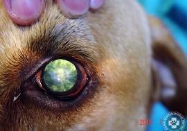 cataracta-szurkehalyog07