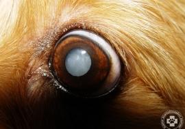 cataracta-szurkehalyog08