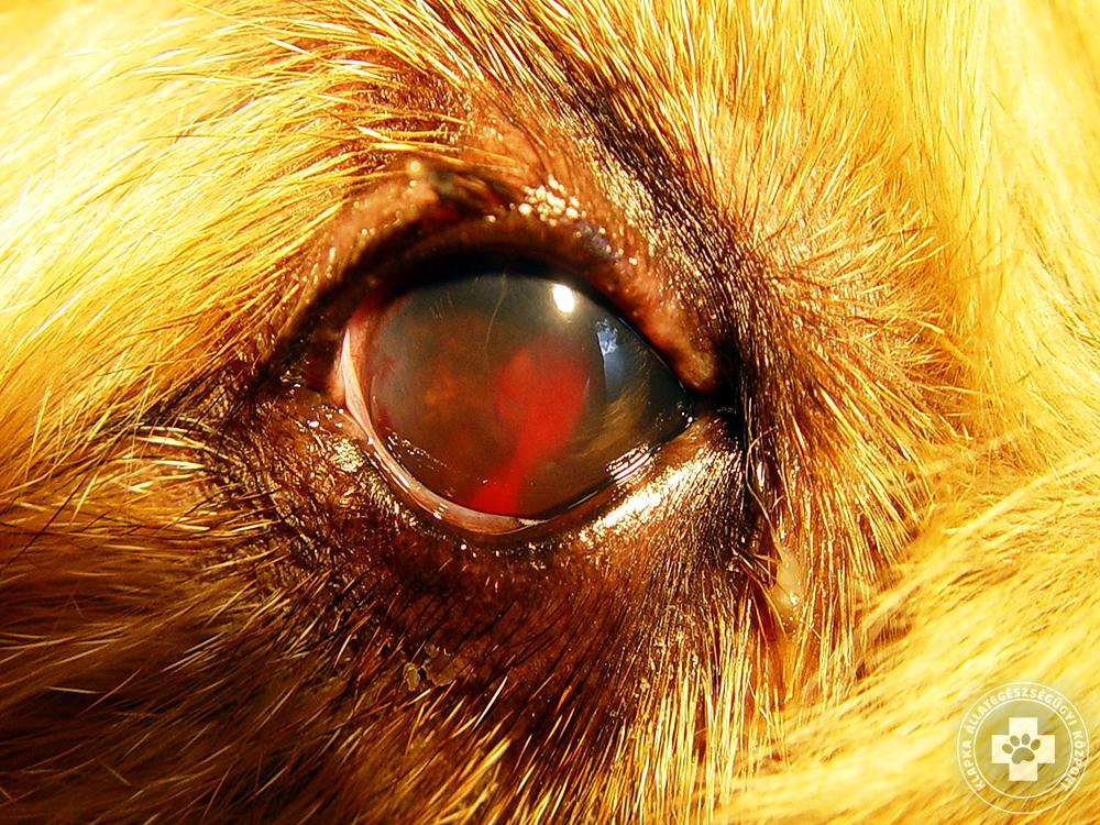hogyan lehet helyreállítani és javítani a látást rövidlátás guggol