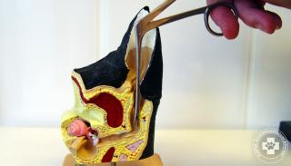 A hallójáratba fúródott toklász és eltávolításának modellezése