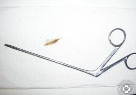 Fülből idegen test fogóval eltávolított toklász