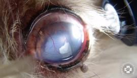 szemészeti coloboma